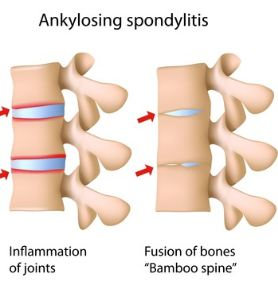 Ankylosing Spondylitis Homeopathy Doctor India