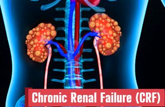 Chronic renal disease Homeopathy Treatment CRD Homeopathy Doctor India