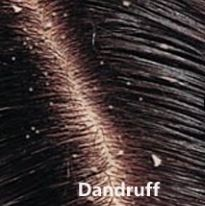 Dandruff Homeopathy Treatment Homeopathy Doctor India