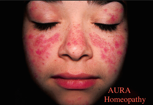 Systemic lupus erythematosus -SLE- Role of Homeopathy Homeopathy Doctor India