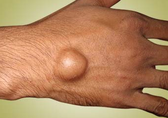 Ganglion or Bible Cyst Homeopathy Doctor India