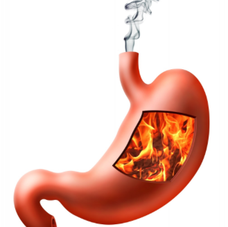 GERD or Gastroesophageal Reflux Disease or Acidity or Acid Reflux Homeopathy Doctor India