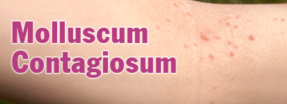 Molluscum Contagiosum Homeopathy Treatment Homeopathy Doctor India