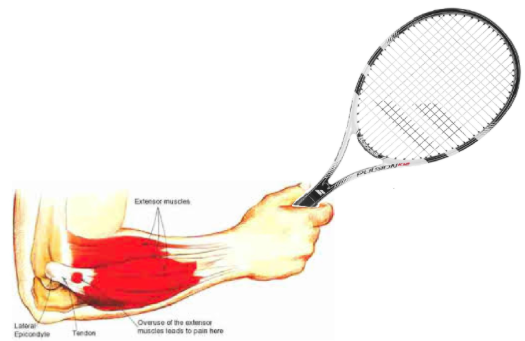 Tennis Elbow Homeopathy Doctor India