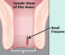 Anorectal Fissure Homeopathy Doctor India