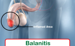 Balanitis Homeopathy Doctor India