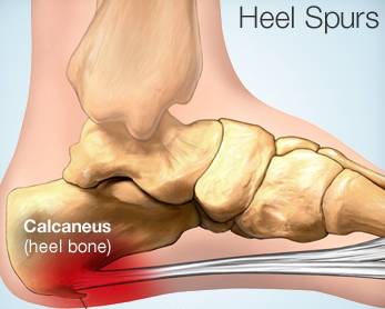 Calcaneal or Heel Spur or Heel Pain Homeopathy Doctor India
