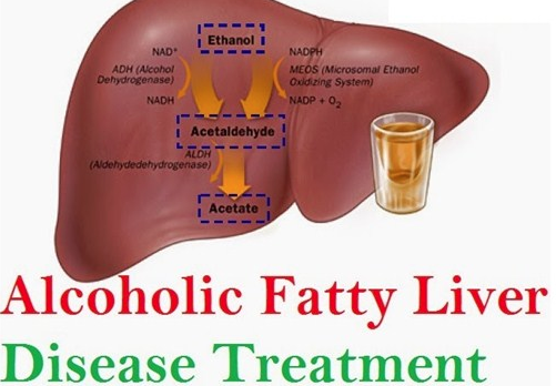 Fatty liver Homeopathy Doctor India