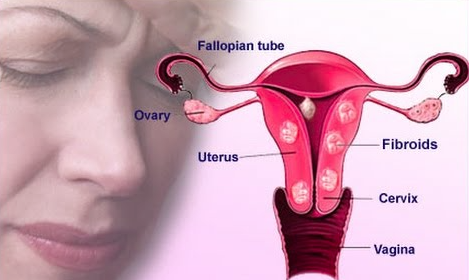 Uterine Fibroids Homeopathy Treatment Homeopathy Doctor India