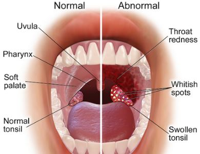 Sore throat Homeopathy Treatment Homeopathy Doctor India