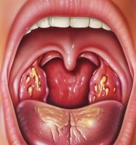Tonsillitis Homeopathy Doctor India