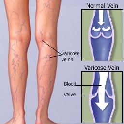 Varicose veins Homeopathy Doctor India
