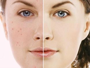 Acne Homeopathy Doctor India