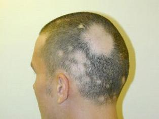 Alopecia Areata Homeopathy Treatment Homeopathy Doctor India