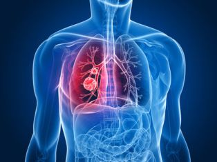 Bronchitis Homeopathy Treatment Homeopathy Doctor India