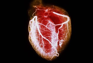 Cardiac problems Homeopathy Doctor India