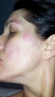 Eczema Homeopathy Doctor India