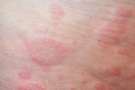 Red, dry patches of skin- not itchy Ask The Doctor